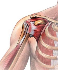 Taping Shoulder After Injury