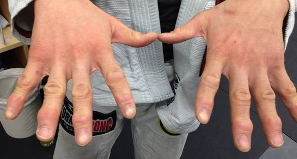 The Science of Taping your Fingers for Jiu Jitsu