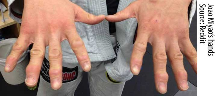 BJJ Fingers: Injuries, Prevention and Treatment Explained | BJJ Heroes